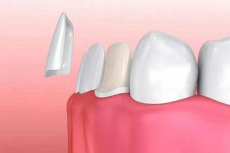 上海做牙齿贴面费用需要多少钱