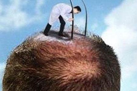 【拜托了,医生 】植发后的头发还会掉吗