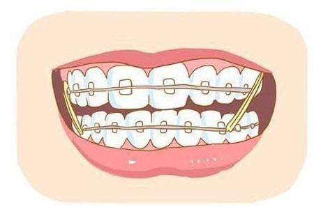 上海钢丝矫正牙齿多少钱
