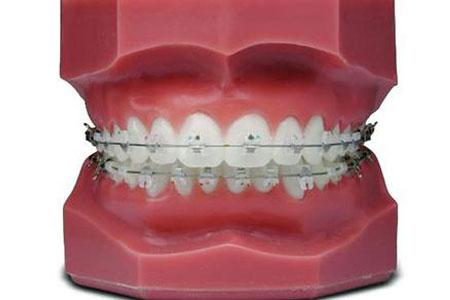 上海做牙齿矫正一般多少钱