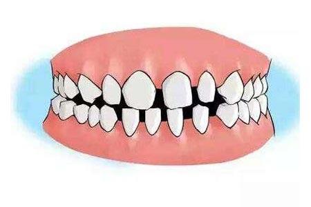 门牙中间有缝做矫正需要多少钱