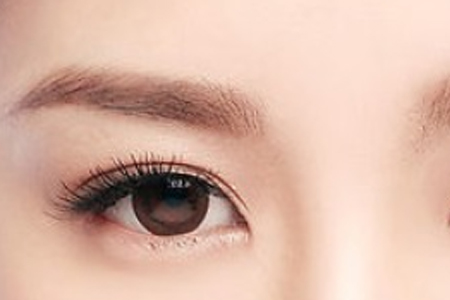割双眼皮一般要多久才能恢复啊