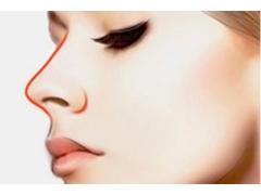 做韩式小翘鼻需要多少钱,安全性怎么样