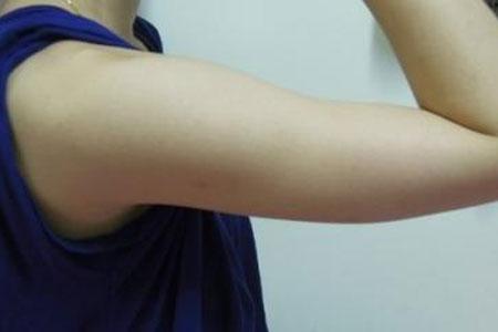 上海做手臂吸脂要多少钱