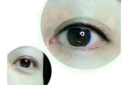 上海美莱纹眼线多少钱,大概几天能恢复