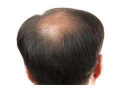 头发种植手术一般需要多少钱