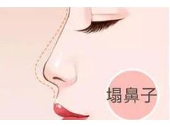 上海做耳软骨隆鼻多少钱,术后注意什么