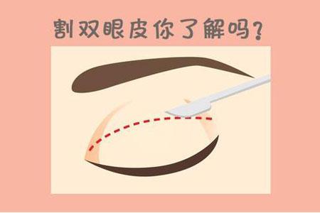 上海做双眼皮需要多少钱,会不会特别贵
