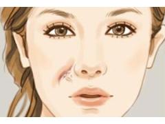 脸上的疤痕怎么才能彻底去除
