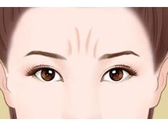 眉间纹一般用什么方法可以去除需要多少钱