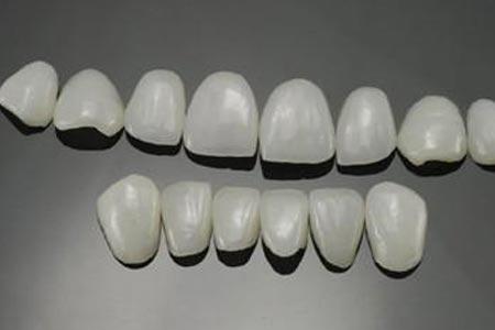 做牙贴面美白牙齿效果自然吗
