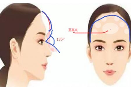 什么方法可以将扁平的额头变得丰满