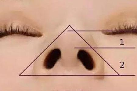 鼻翼肥大做整形术需要多少钱