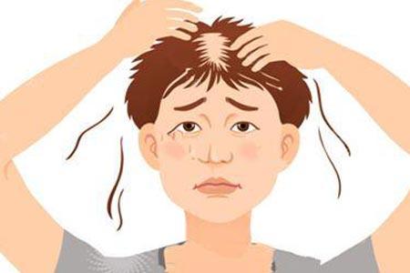 掉发严重现在做植发需要多少钱
