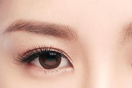 埋线双眼皮术后效果能维持几年时间