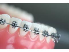 上海做矫正牙齿一般要多少钱