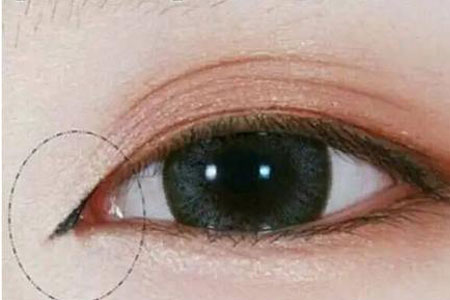 开眼角整形术后注意事项有哪些