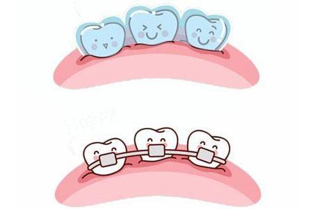 在上海做牙齿矫正大概需要多少钱