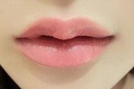 玻尿酸注射丰唇的效果好不好,自然吗
