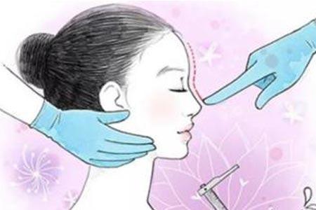 上海玻尿酸注射隆鼻手术多少钱一次