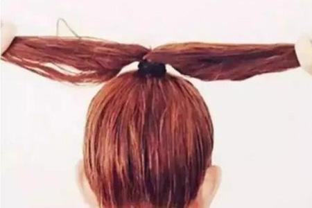 头发扎的太高导致发际线后移怎么办
