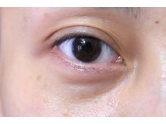 用什么方法可以有效的祛黑眼圈