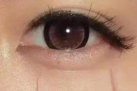 做祛眼袋术大概需要多少钱