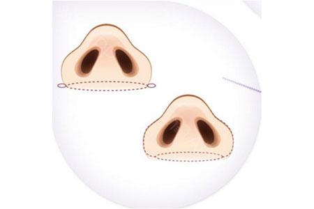 上海鼻头鼻翼缩小注意事项有哪些