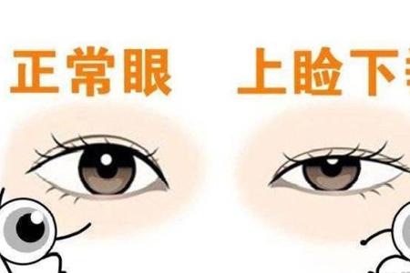 上海上睑下垂矫正效果好吗