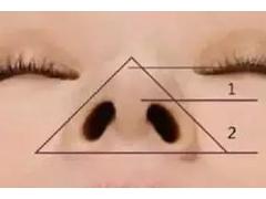 做了鼻翼缩小鼻头要肿多久才能恢复