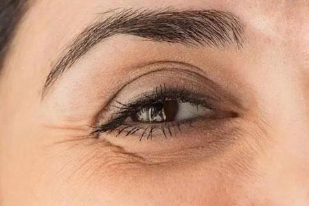 眼角有鱼尾纹做手术去除大概要多少钱