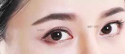 开了内眼角之后眼角会有疤痕吗