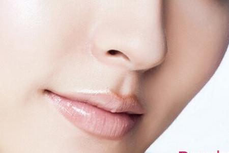 鼻翼肥大做手术真的可以缩小吗