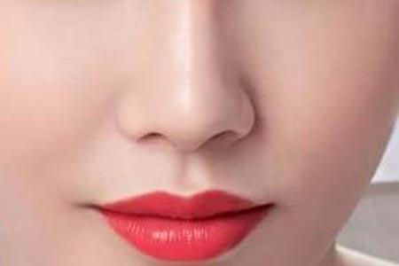 上海做自体肋软骨隆鼻手术费用是多少
