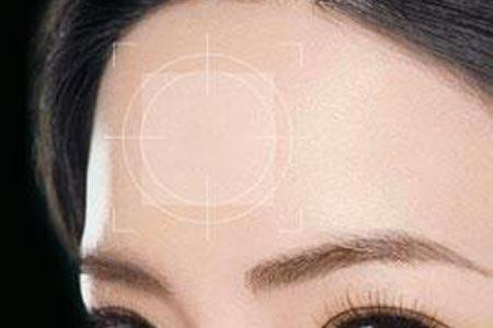 上海丰额头手术价格多少钱